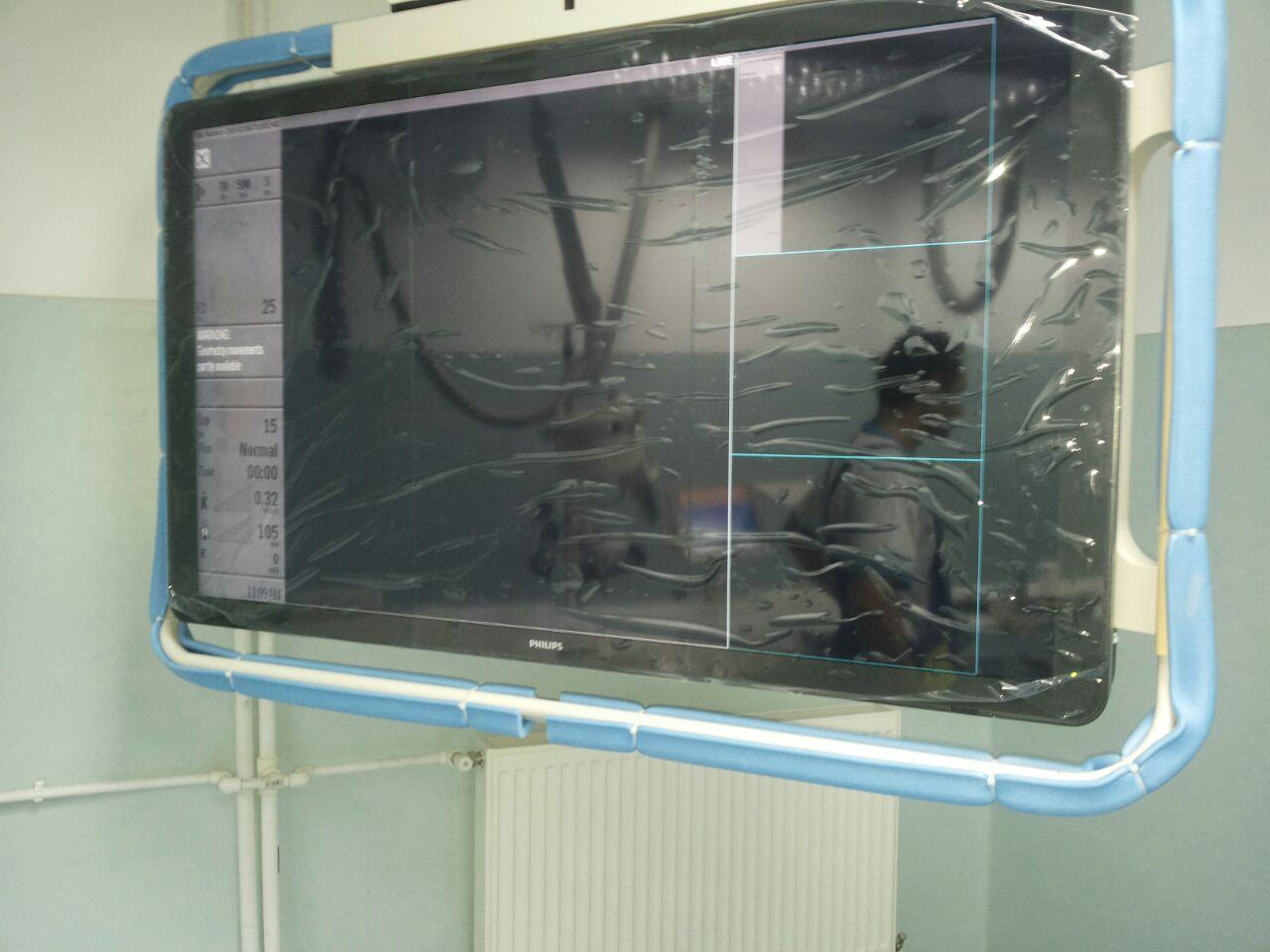 Angiograf (1).jpg